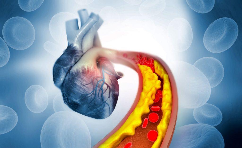 Le cholestérol est une molécule grasse présente dans notre sang, qui peut boucher les artères de notre corps.
