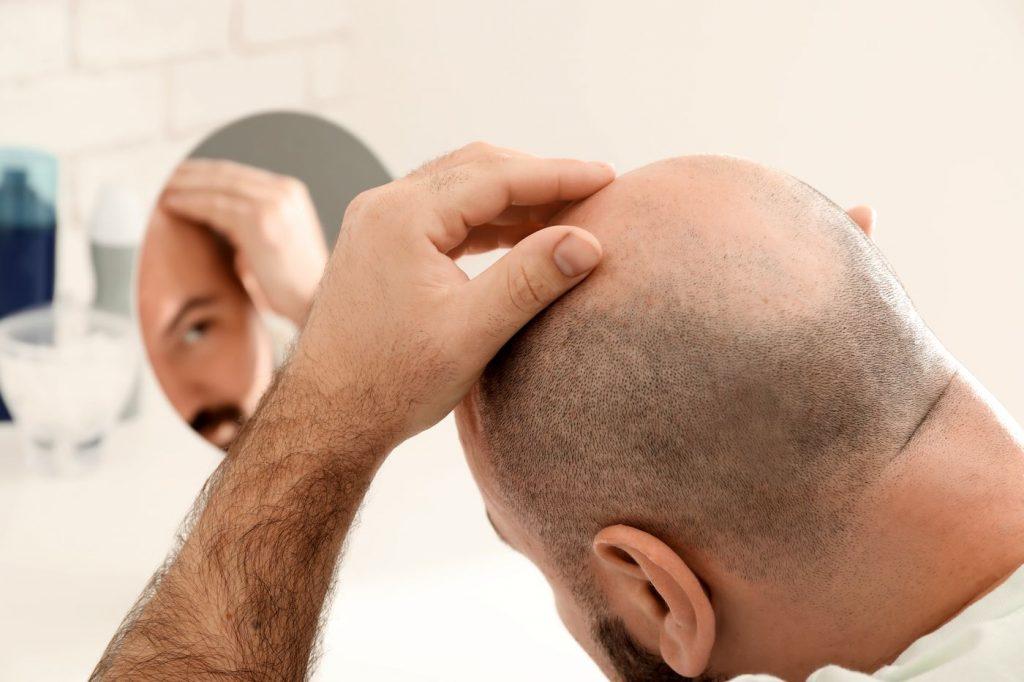 L'alopécie peut être définie comme la perte de cheveux sur le crâne