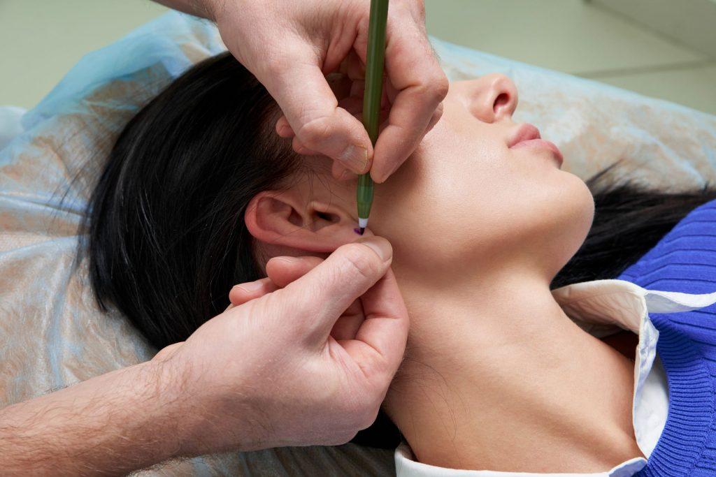 L'otoplastie, la chirurgie des oreilles